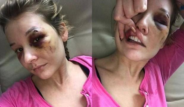 Yêu nhau được 3 tháng, cô gái bị bạn trai đánh đập tàn nhẫn và suýt bán vào động mại dâm - Ảnh 2.