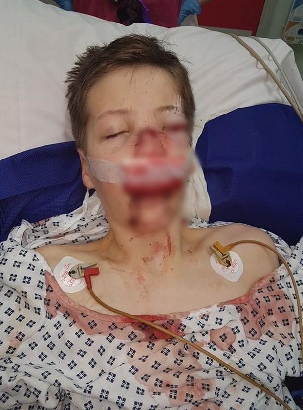 Bé trai suýt chết sau tai nạn đi xe đạp chỉ vì không tuân thủ hành động đảm bảo an toàn này - Ảnh 1.