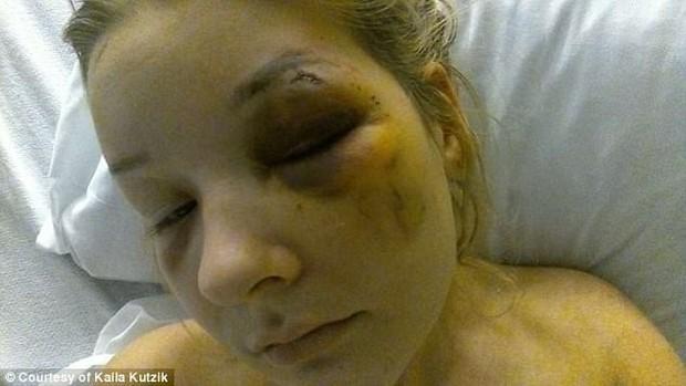 Yêu nhau được 3 tháng, cô gái bị bạn trai đánh đập tàn nhẫn và suýt bán vào động mại dâm - Ảnh 3.