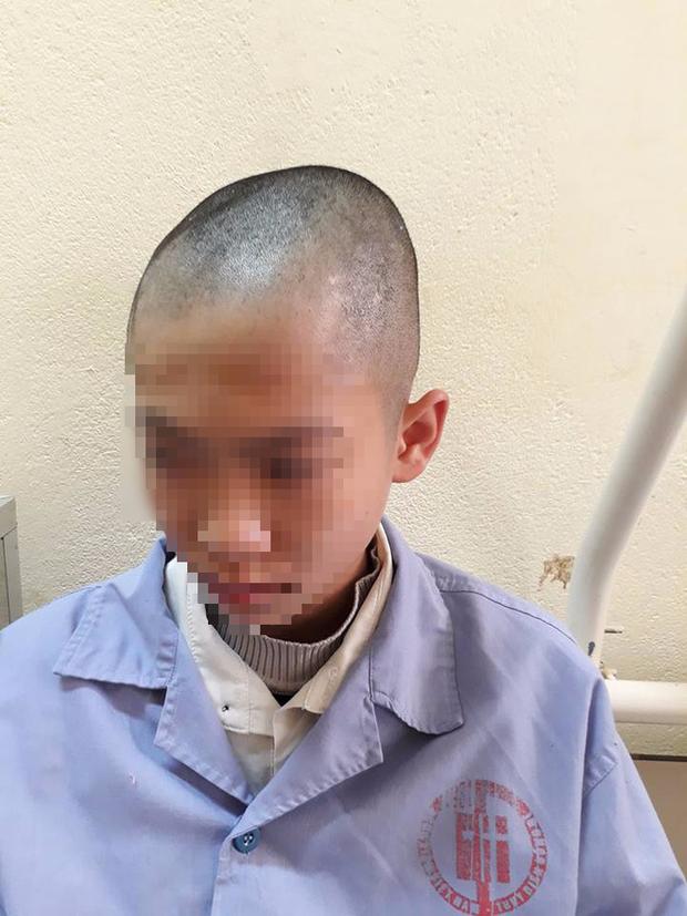 Quảng Ninh: Nam sinh lớp 9 nhập viện, nghi bị thầy giáo tát khiến tụ máu ở đầu - Ảnh 5.