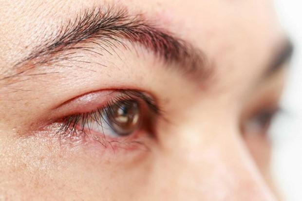 Cẩn thận nếu thấy mắt gặp phải những vấn đề bất thường này, đặc biệt là cái số 3 - Ảnh 3.