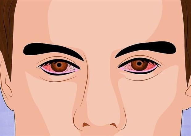 Cẩn thận nếu thấy mắt gặp phải những vấn đề bất thường này, đặc biệt là cái số 3 - Ảnh 5.