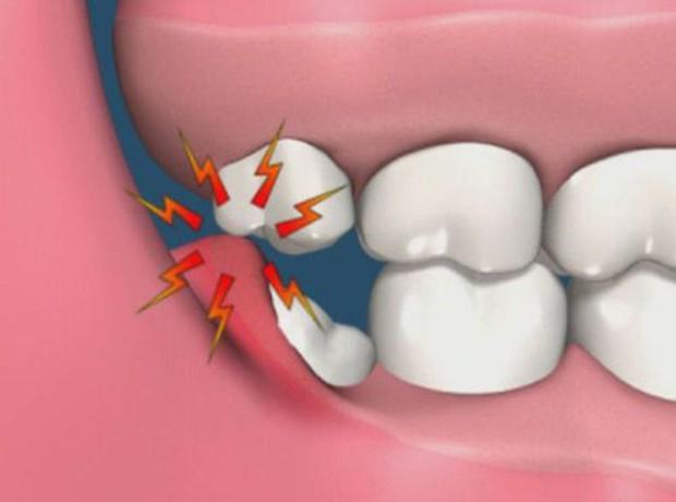 5 dấu hiệu bất thường ở vùng răng miệng có thể dự báo nhiều căn bệnh nguy hiểm mà bạn không lường trước được - Ảnh 1.