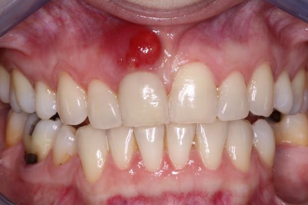 5 dấu hiệu bất thường ở vùng răng miệng có thể dự báo nhiều căn bệnh nguy hiểm mà bạn không lường trước được - Ảnh 3.