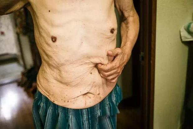 3 năm, 32 bức ảnh, nhiếp ảnh gia ghi lại quá trình trước khi cha từ giã cõi đời vì ung thư: Đừng để người thân một mình chống chọi - Ảnh 13.