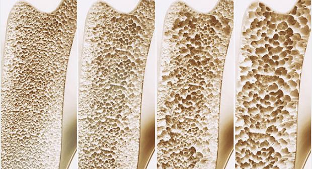 Đau vùng thắt lưng có thể là dấu hiệu cảnh báo một trong những vấn đề sức khỏe nguy hại sau - Ảnh 3.
