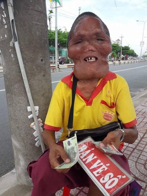 Xót xa cảnh người đàn ông bán vé số có gương mặt quỷ do mắc bệnh lạ khiến nhiều người sợ hãi chẳng dám mua - Ảnh 3.
