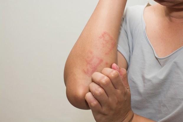 Cô gái người Đài Loan bị ngứa đến chảy cả máu chỉ vì món ăn nóng hổi được nhiều người yêu thích trong mùa đông - Ảnh 1.