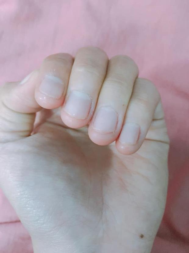 Có một kiểu người móng tay chẳng bao giờ nhú lên được vì cứ rảnh là ngồi cắn - Ảnh 3.