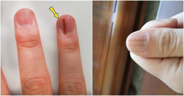Móng tay có những biểu hiện này rất dễ kéo theo nhiều vấn đề sức khỏe nguy hại mà bạn không nên coi thường - Ảnh 3.