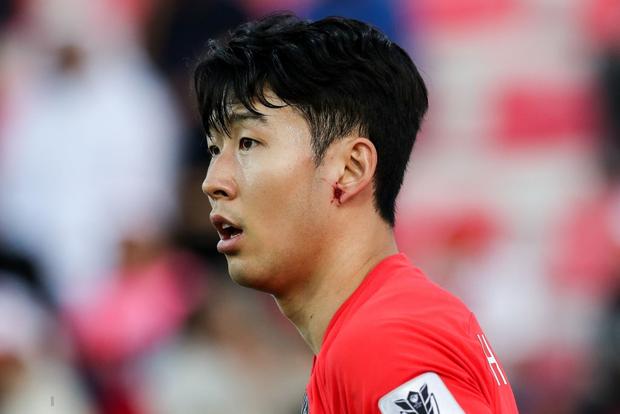Cầu thủ đắt giá nhất châu Á nỗ lực cống hiến cho Hàn Quốc đến mức chảy cả máu vành tai - Ảnh 6.
