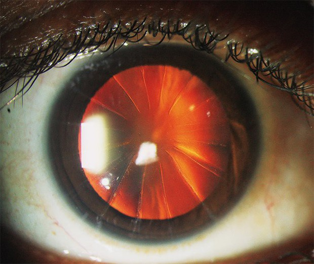 Bệnh nhân với con mắt siêu hiếm trông như bánh pizza 8 miếng: Minh chứng cho thấy y học đã từng đáng sợ như thế nào - Ảnh 1.