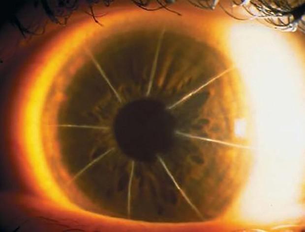 Bệnh nhân với con mắt siêu hiếm trông như bánh pizza 8 miếng: Minh chứng cho thấy y học đã từng đáng sợ như thế nào - Ảnh 3.