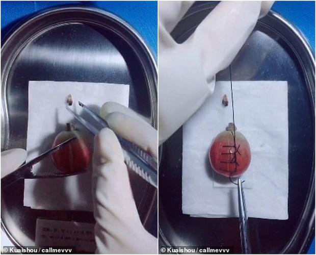Gặp gỡ vị bác sỹ Trung Quốc chuyên phẫu thuật cho trái cây để nâng cao nhận thức về phẫu thuật cho cộng đồng - Ảnh 2.
