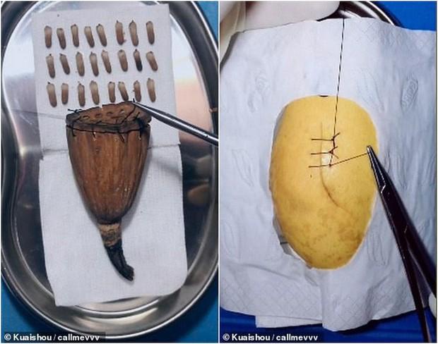 Gặp gỡ vị bác sỹ Trung Quốc chuyên phẫu thuật cho trái cây để nâng cao nhận thức về phẫu thuật cho cộng đồng - Ảnh 3.