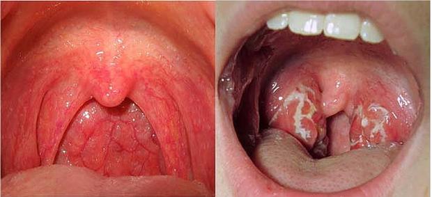 5 căn bệnh ung thư dễ mắc nhất ở cả 2 giới tại Việt Nam hiện nay, hãy phòng tránh ngay từ bây giờ - Ảnh 12.