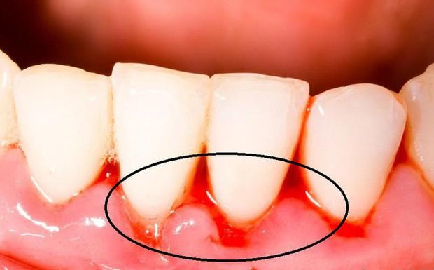 5 triệu chứng bất thường ở răng miệng cảnh báo nhiều vấn đề nguy hại mà bạn không nên chủ quan bỏ qua - Ảnh 4.
