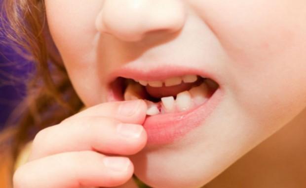 5 triệu chứng bất thường ở răng miệng cảnh báo nhiều vấn đề nguy hại mà bạn không nên chủ quan bỏ qua - Ảnh 5.
