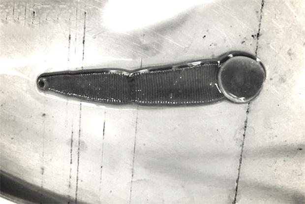Nghệ An: Bị chảy máu cam nặng, người đàn ông đến viện khám mới biết 1 con đỉa đã sống trong mũi mình suốt 3 tháng - Ảnh 1.