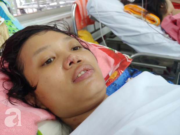 Mẹ mới sinh phải cắt cụt tứ chi sau khi bị áp xe vú: Bác sĩ sản khoa tiết lộ thông tin bất ngờ - Ảnh 1.