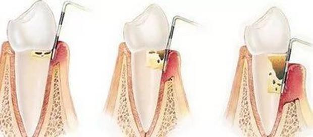 Mới 28 tuổi đã rụng răng như bà lão, cô gái Trung Quốc bất ngờ vì căn bệnh tiềm ẩn đằng sau đó - Ảnh 3.