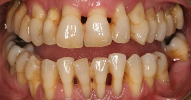 Mới 28 tuổi đã rụng răng như bà lão, cô gái Trung Quốc bất ngờ vì căn bệnh tiềm ẩn đằng sau đó - Ảnh 1.
