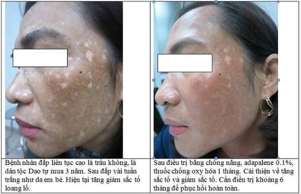Quý bà nhập viện với da mặt biến dạng, loang lổ vì đắp lá làm trắng - Ảnh 1.