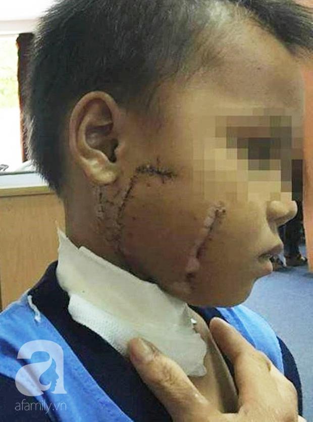 Thương tâm: Mẹ chở con không đội nón bảo hiểm, nhiều trẻ bị tai nạn cực nặng đến biến dạng mặt - Ảnh 4.