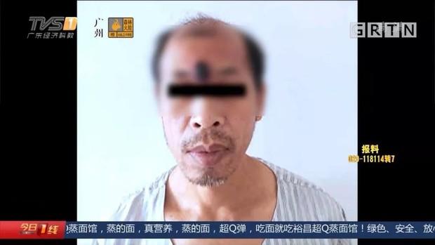 Ngứa mắt cục mụn trước trán, người đàn ông tự nặn mụn ở nhà rồi đau đớn phát hiện ra đó là một khối u ác tính - Ảnh 2.