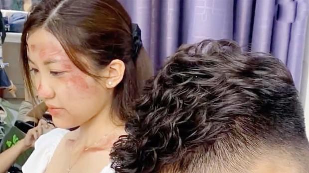 Lộ ảnh Trà Tuesday (Hoa Hồng Trên Ngực Trái) bị đánh tới má nhận không ra: Khuê ra tay hay Thái bạo hành? - Ảnh 1.