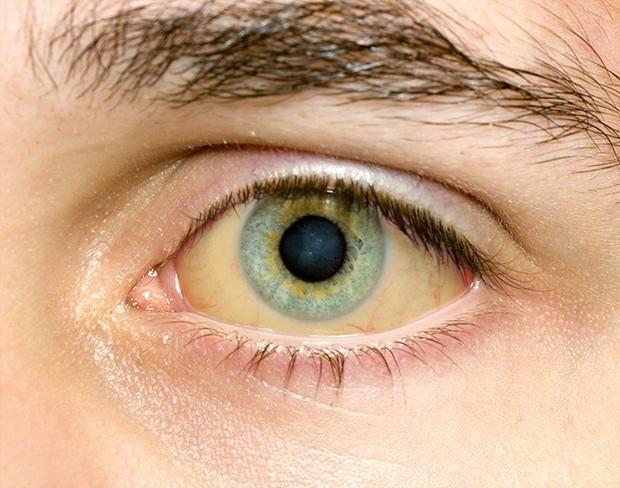 Sáng ngủ dậy xuất hiện 5 triệu chứng này thì nhiều khả năng sức khỏe của bạn đang rất tồi tệ - Ảnh 3.