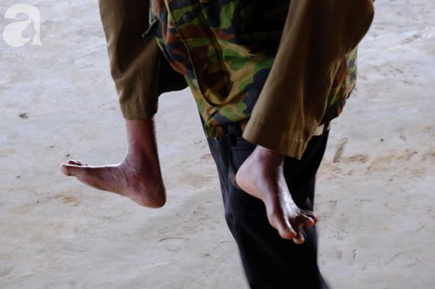 Hình ảnh xúc động tại Lào: Con trai út cõng cha già 77 tuổi bị liệt vượt hàng chục cây số đến nhờ bác sĩ Việt chữa trị - Ảnh 5.