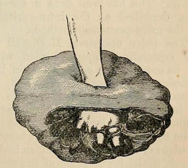 Trùm cuối của các loại u: Phát triển không theo quy luật nào, lại còn... mọc được cả răng lẫn tóc - Ảnh 4.