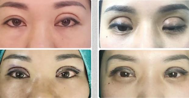 Những ca tai nạn kinh hoàng khi cắt mí mắt, nhấn mí ở spa chất lượng kém: Bài học đắt giá cho các chị em khi phẫu thuật thẩm mỹ - Ảnh 1.