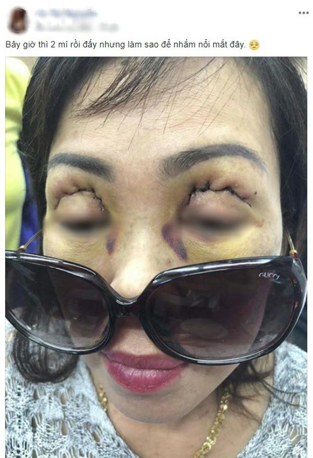 Những ca tai nạn kinh hoàng khi cắt mí mắt, nhấn mí ở spa chất lượng kém: Bài học đắt giá cho các chị em khi phẫu thuật thẩm mỹ - Ảnh 3.