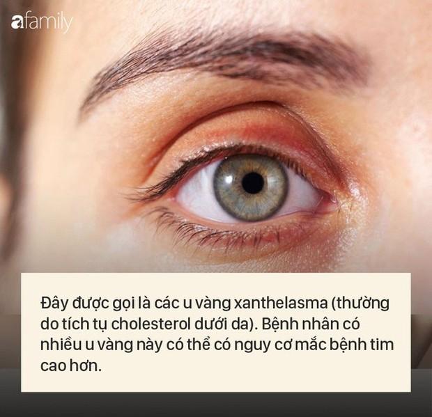"""8 dấu hiệu cảnh báo bệnh được """"khắc"""" rất rõ trên khuôn mặt của bạn - Ảnh 3."""