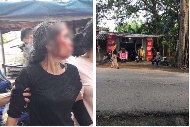 Phú Thọ: Con rể cũ chém mẹ vợ nguy kịch trong lúc cãi vã - Ảnh 1.