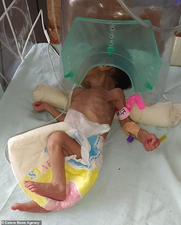 Bị chôn cất gần 1 mét dưới đất, bé gái 5 ngày tuổi vẫn sống sót thần kỳ trong sự ngỡ ngàng của bố mẹ - Ảnh 1.