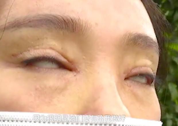 Chi 45 triệu đồng cắt mí rồi nhận lại kết quả không ra gì, cô gái trẻ chìm trong tuyệt vọng vì không thể nhắm nổi mắt - Ảnh 1.