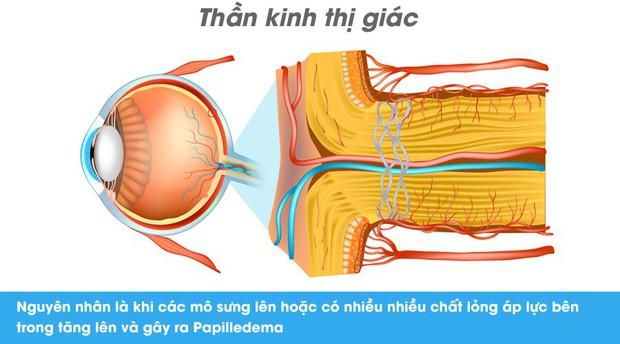 Thói quen kén ăn, chế độ ăn uống nghèo nàn có thể dẫn đến suy giảm thị lực nghiêm trọng cả hai mắt - Ảnh 3.