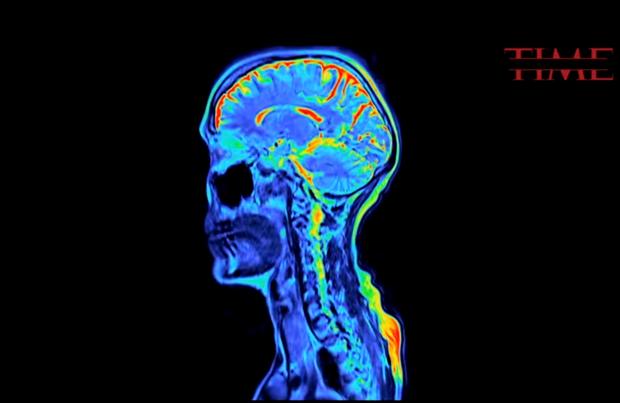 Càng hoạt động não bộ nhiều, con người càng chết sớm, ít dùng não lại sống lâu - Ảnh 2.
