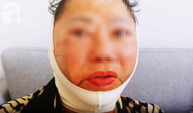 Trong các phương pháp căng da mặt, căng da mặt bằng chỉ, dù nhẹ nhàng nhất nhưng cũng có rủi ro biến chứng đi kèm! - Ảnh 1.