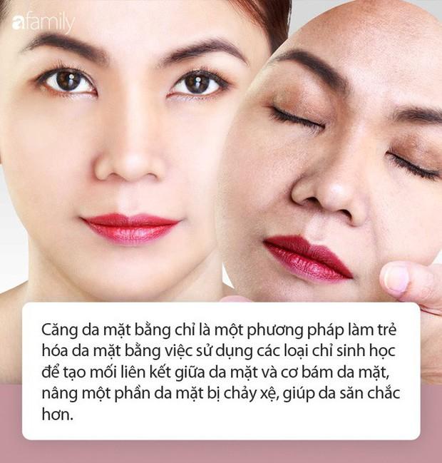 Trong các phương pháp căng da mặt, căng da mặt bằng chỉ, dù nhẹ nhàng nhất nhưng cũng có rủi ro biến chứng đi kèm! - Ảnh 2.