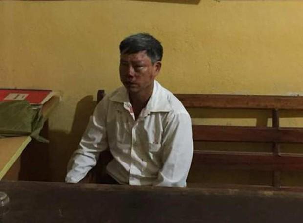 Thanh Hóa: Bị vu cáo bắt cóc trẻ em, một người đàn ông bị đánh xây xẩm mặt mày - Ảnh 1.