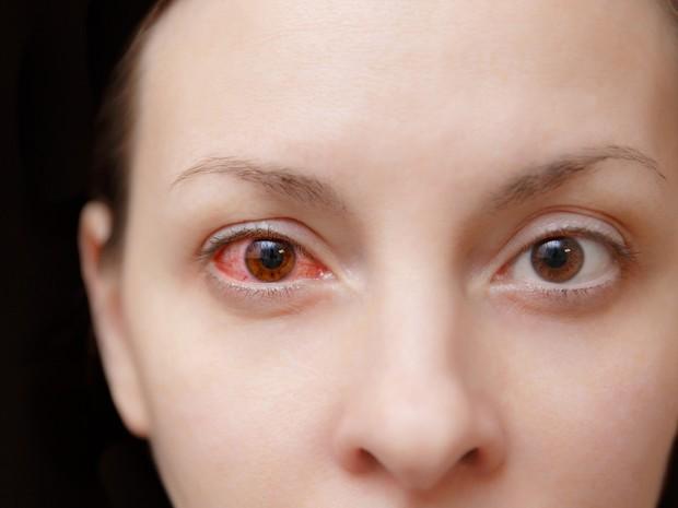 Chú ý các loại bệnh nguy hiểm này có biểu hiện ngứa mắt khi mùa thu đến - Ảnh 1.