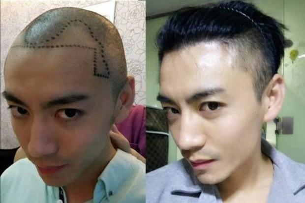 Đại dịch hói đầu tấn công đàn ông Trung Quốc, dịch vụ chăm sóc và cấy tóc mọc lên như nấm sau mưa - Ảnh 1.