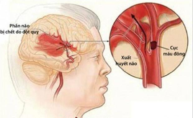 Cảnh giác với căn bệnh đột quỵ não gây tử vong đứng hàng thứ 3 chỉ sau ung thư và tim mạch - Ảnh 1.