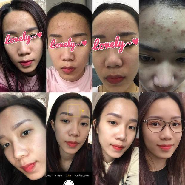 1 năm bị mụn chi chít, 3 tháng sau da mặt cô nàng này láng căng, sạch thâm nhờ cách chăm sóc cực đơn giản - Ảnh 1.