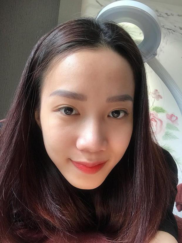 1 năm bị mụn chi chít, 3 tháng sau da mặt cô nàng này láng căng, sạch thâm nhờ cách chăm sóc cực đơn giản - Ảnh 2.
