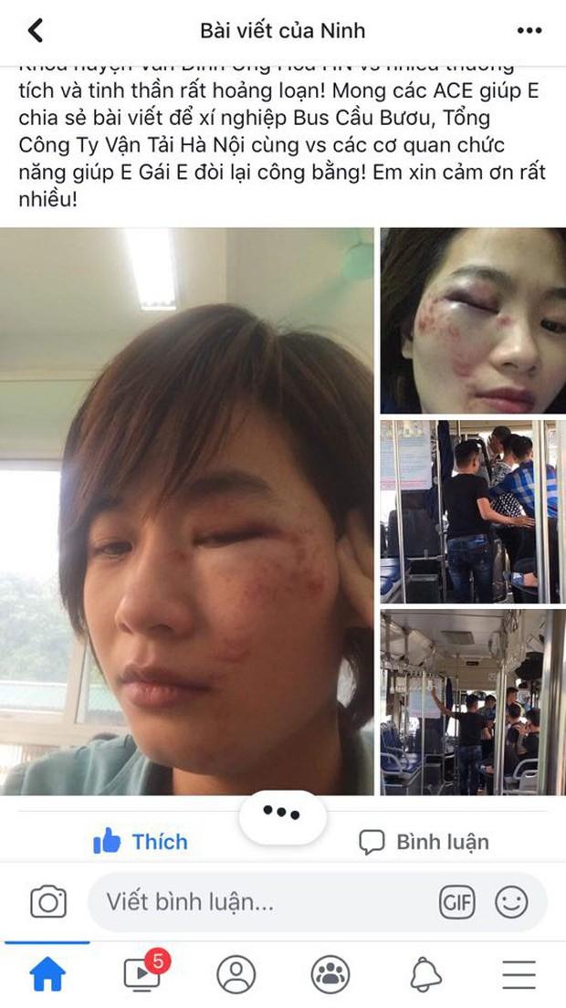 Hà Nội: Nữ nhân viên xe buýt tố bị nhóm thanh niên hành hung vào đúng ngày 20/10, phải nhập viện cấp cứu - Ảnh 1.